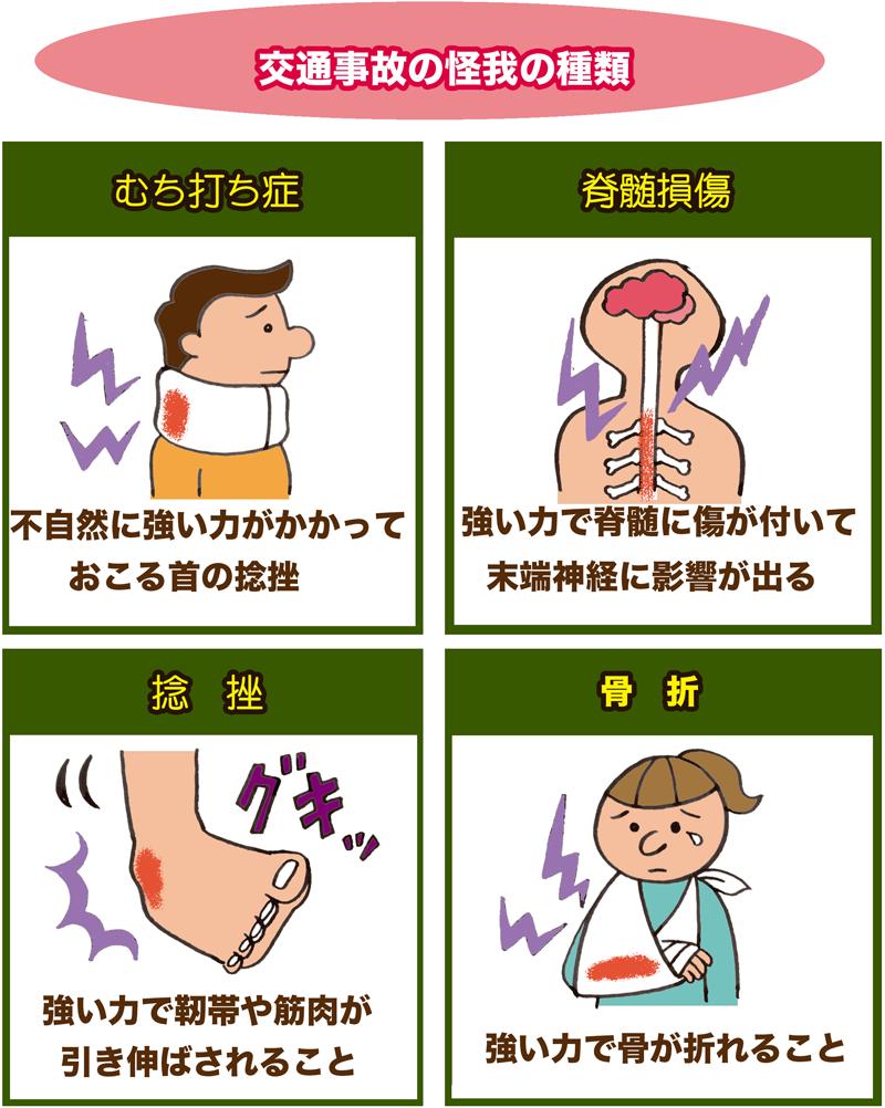 交通事故の怪我の種類