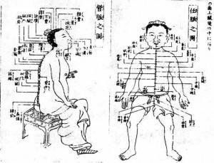 接骨院や鍼などの治療である漢方のイメージ画像