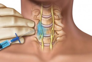 交通事故のむち打ちの結果、頸部に麻酔を打つイメージ画像