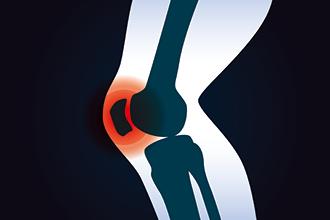 交通事故で膝を打撲した人のイメージ画像