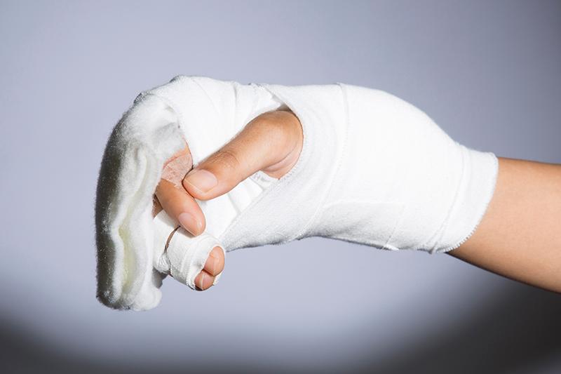 手のひらに怪我をしたイメージ画像