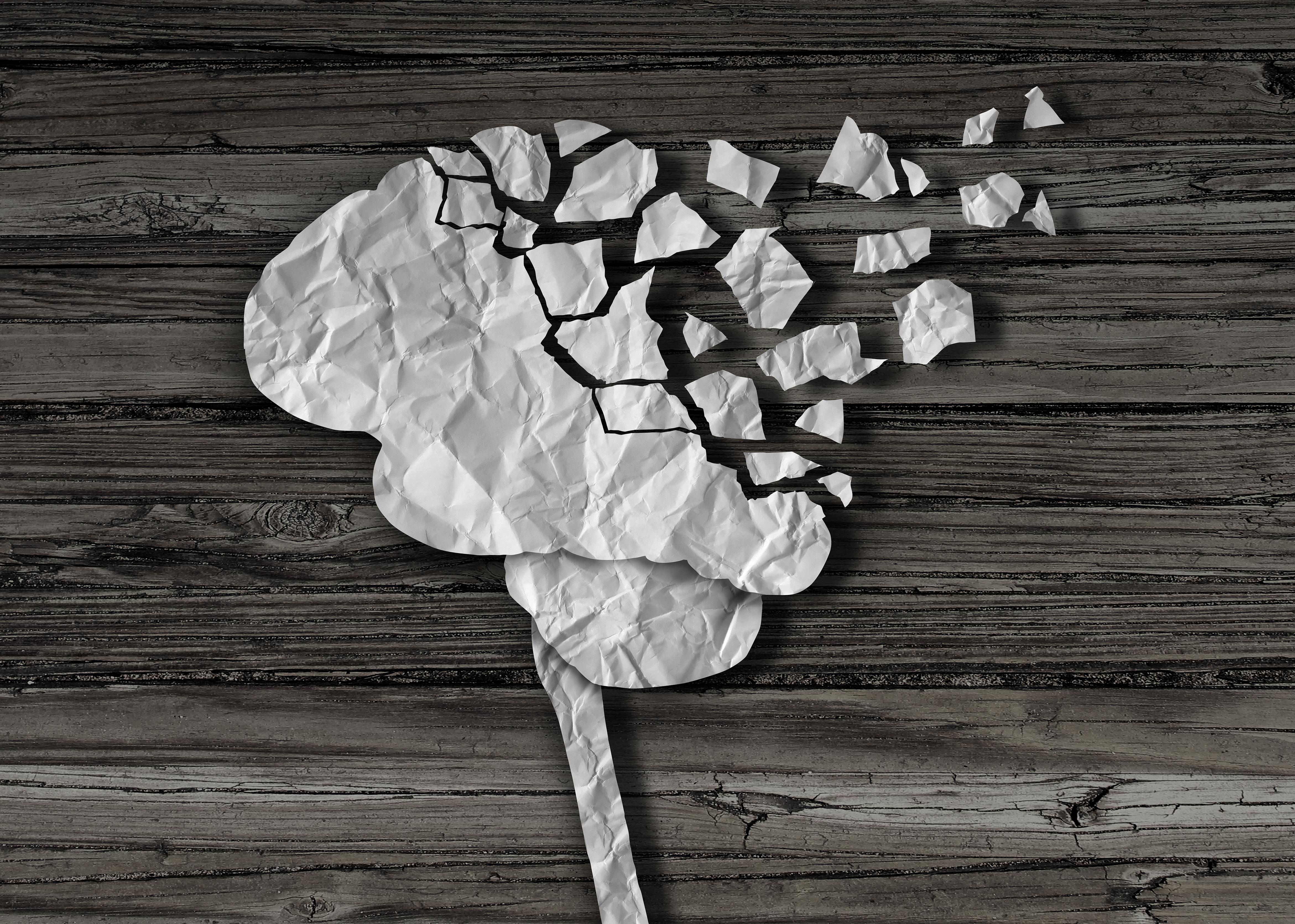 交通事故により脳を損傷するイメージ画像